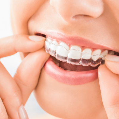 Need braces? With treatments like Invisalign in St. Johns Wood, no one will know the difference!