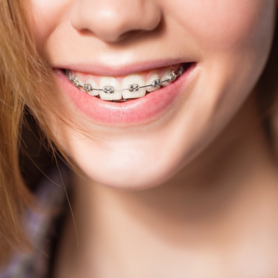 Been Told You Need Braces? A Guide to Regular and Cosmetic Orthodontic Treatments in Navan
