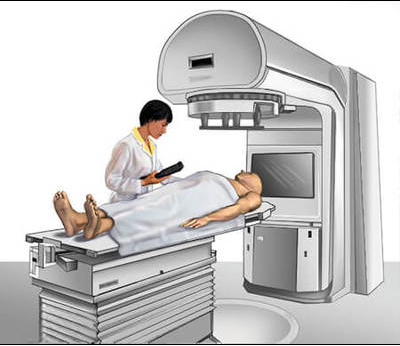 Essentials to Think About After Radiation Therapy