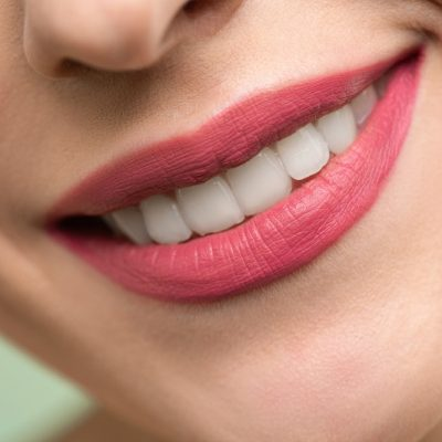 Common Myths About Teeth Whitening