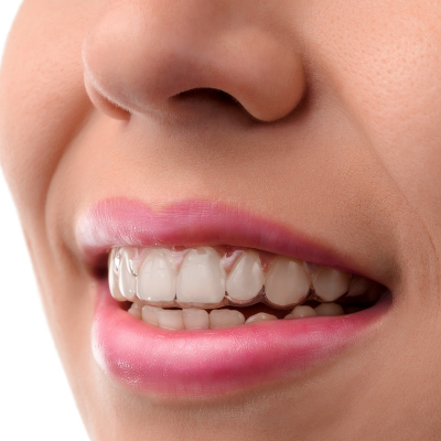 Realigning your teeth: Let's get a few things straight!